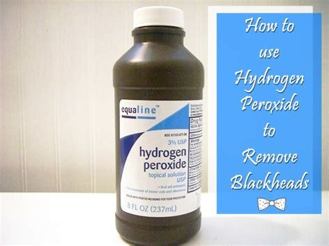 can i use hydrogen peroxide on my how to use hydrogen peroxide to remove blackheads