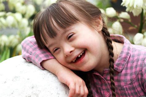 imagenes niños sindrome down jugando descobertas muta 231 245 es que causam leucemia em crian 231 as com