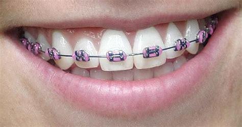 Biaya Membersihkan Karang Gigi Di Rsgm info seputar fakta dan mitos mengenai kawat gigi behel braces orthodonti berapa biaya