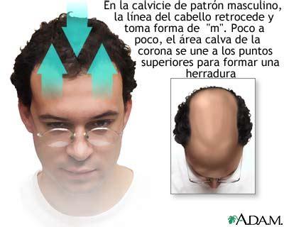 male pattern baldness shape 191 cu 225 les son las enfermedades m 225 s comunes de la piel parte iii