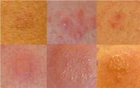 pach test patch test reactions following 48 hours of occluded 5