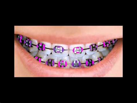 color for braces braces color