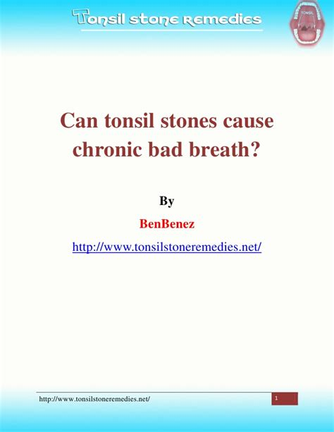 can tonsil stones cause chronic bad breath
