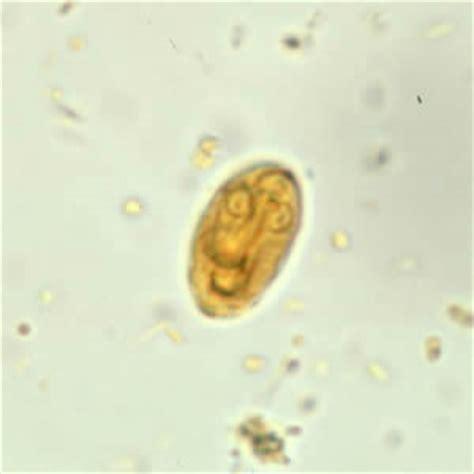 giardia picture cdc dpdx giardiasis