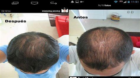 alopecia celulas madre 2016 como recuperar tu cabello testimonio youtube