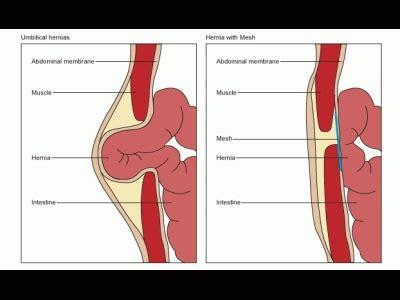 25 best ideas about umbilical hernia on hernia exercises diastis recti exercises