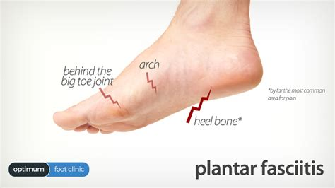 What Is Planter Fascitis by Plantar Fasciitis Heel Explained