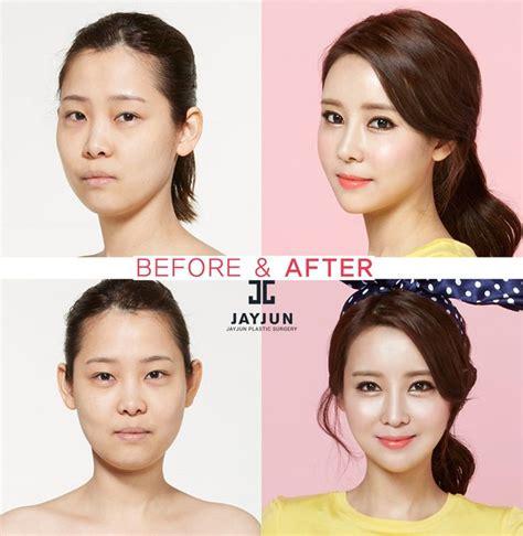 tutorial job online korean nose surgery in korea rhinoplasty revision in south korea