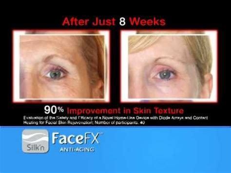 silk n facefx anti aging light based treatment device silk n facefx anti aging device at bed bath beyond