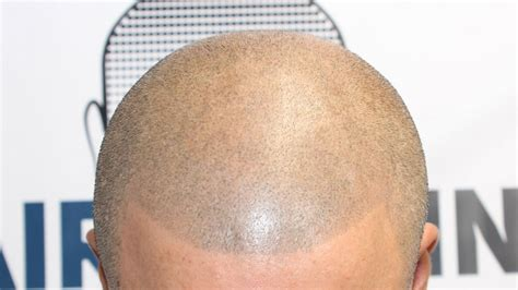 scalp micropigmentation to make hair ticker pictures scalp makeup hair loss mugeek vidalondon