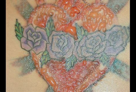tattoo hives treatment tattoo allergic reaction picture image on medicinenet com