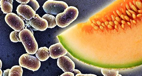 food bacteria quiz what foods can listeria how does is make sick what are the