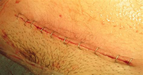 cesarean section incision the cesarean scar