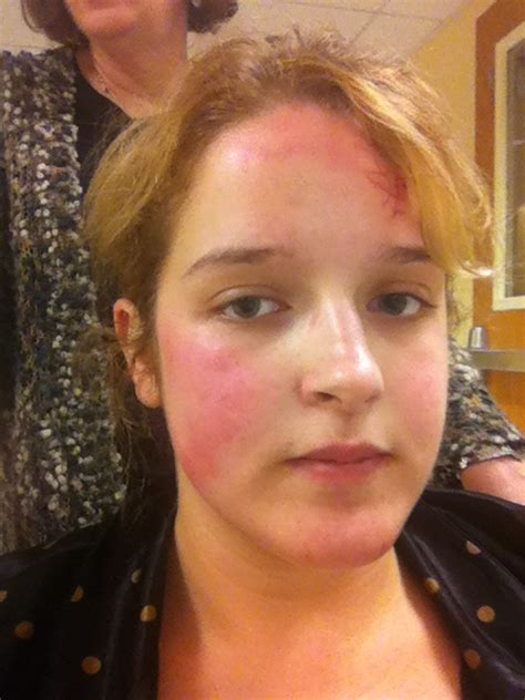 Rash On Forehead After Shower by Symptoms Photos Live Laugh