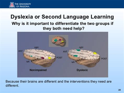 Learning A Second Language dyslexia or second language learning