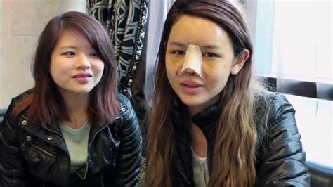 blogger qiuqiu plastic surgery regen plastic surgery korea famous power blogger in