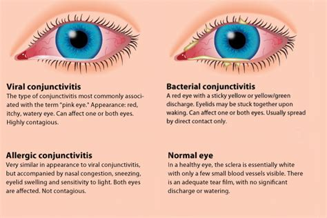 Can U Get Pink Eye From On A Pillow by How To Avoid Quot Pink Eye Quot Conjunctivitis Eye Center