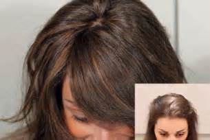 wigs for thinning hair that are not to wear toronto wigs for alopecia and cancer patients