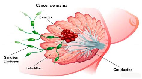 imagenes gratis cancer de mama alimentos que matan el 100 de las c 233 lulas de c 225 ncer de