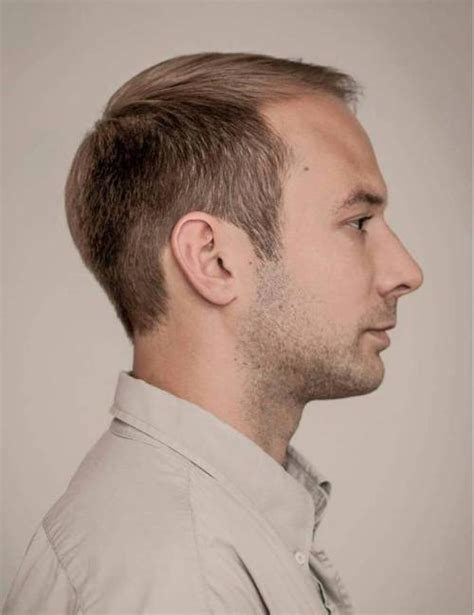haircut for thinning crown 50 classy haircuts and hairstyles for balding men
