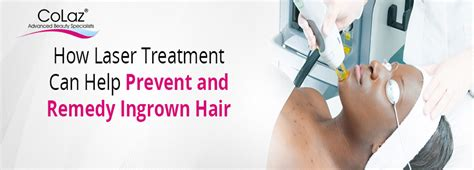 stop ingrown hairs laser hair removal on long island new laser ingrown hair removal prevention and remedy colaz