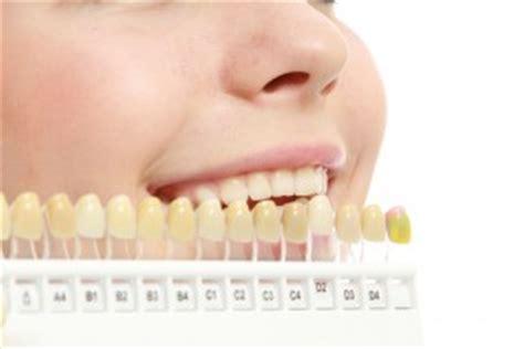 teeth changed colors   years ventura