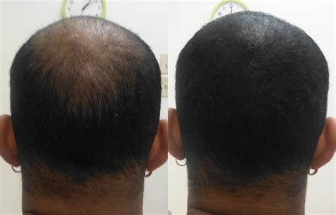 scalp micropigmentation to make hair ticker pictures african american men and scalp micropigmentation