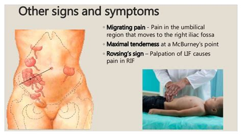 how to appendicitis the symptoms and treatment