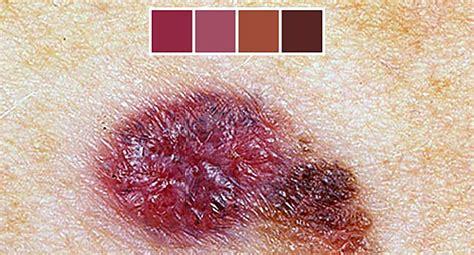 skin cancer symptoms pictures  skin cancer
