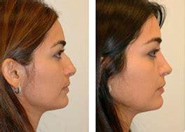 imagenes plastic surgery miami fl rhinoplasty miami fl