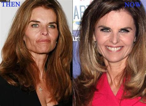 deidre hall height and weight maria shriver plastic surgery before after breast implants