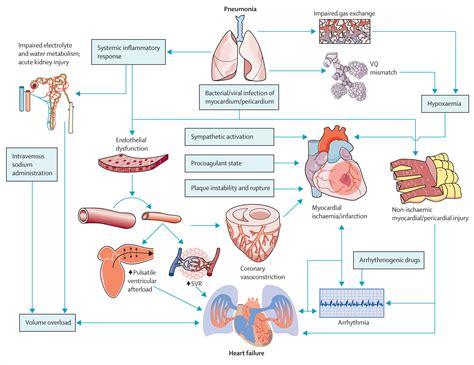 pathophysiology of pneumonia diagram acute pneumonia and the cardiovascular system the lancet