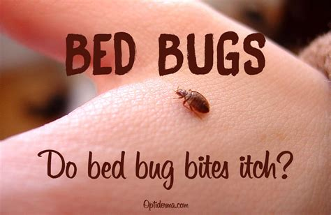 bed bug bites itch   stop  itch  bed bug bites