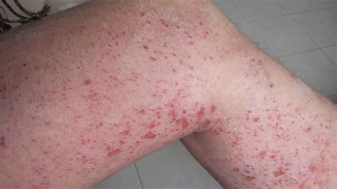 my itchy bumps on my thighs that itch