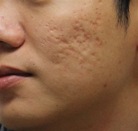 acne scars on face treatment skin problems and their treatment health care beauty