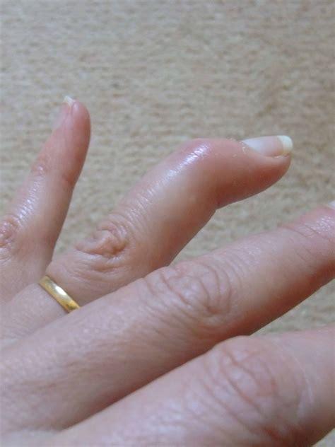 how to finger mallet finger town mouse