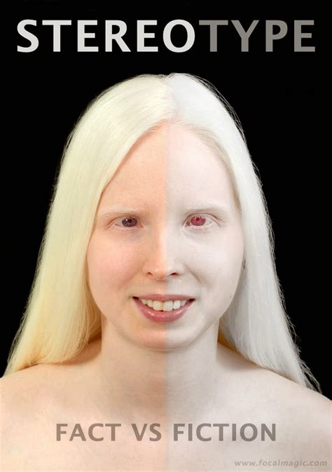 what color do albinos community types of albinism