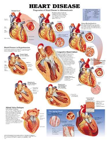 hearts and sharts disease unmounted chart skeletons and more