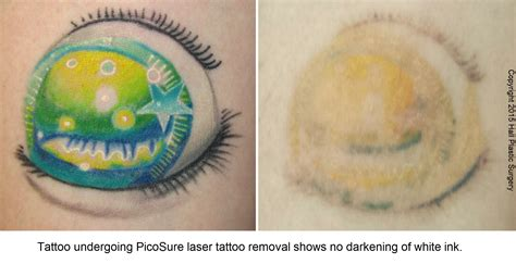 green tattoo removal white ink picosure laser removal austinpicosure
