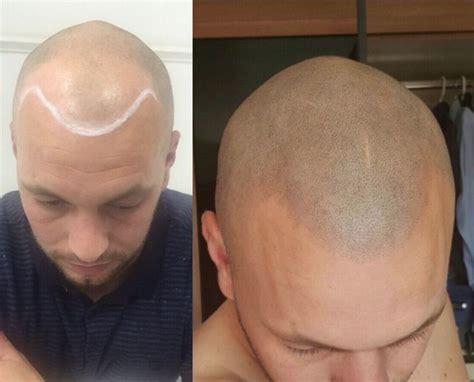 hair pigment loss 14 best scalp micro pigmentation images on pinterest