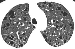 mosaic pattern ground glass opacity lymphocytic interstitial pneumonia in a female patient