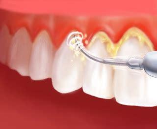 Membersihkan Karang Gigi majalah dibalik wanita cara membersihkan karang gigi