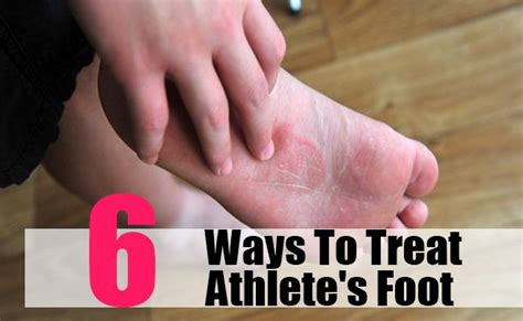 kill athletes foot in shoes how to kill athlete s foot in shoes 28 images the