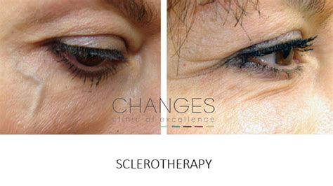 tattoo fixers portsmouth surgical and non surgical eye treatments to fix bags and