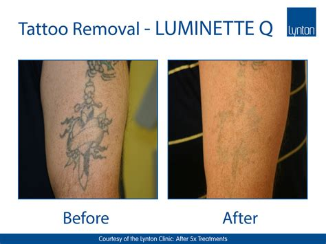 tattoo removal results luminette q the addition for laser