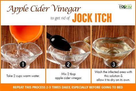 itching remedies apple cider vinegar how to get rid of itch top 10 home remedies