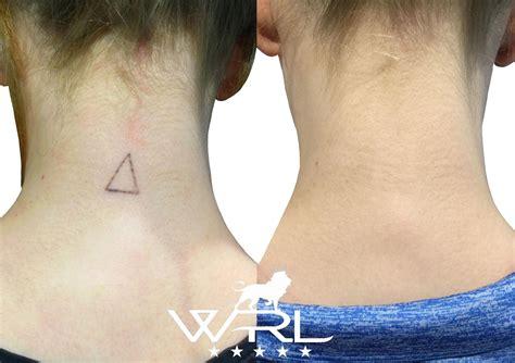 tattoo removal on neck laser removal neck whiteroom laser ltd