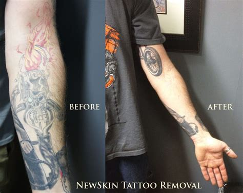 white tattoo removal newskin removal 544 milford rd swansea