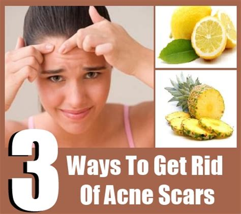 ways to get the most home for your money how to get rid of acne scars remedies for acne