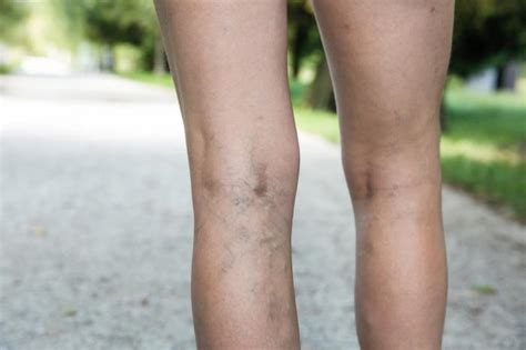 varicose veins treatment symptoms causes pictures varicose veins causes diagnosis and treatments